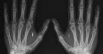 implant nfc