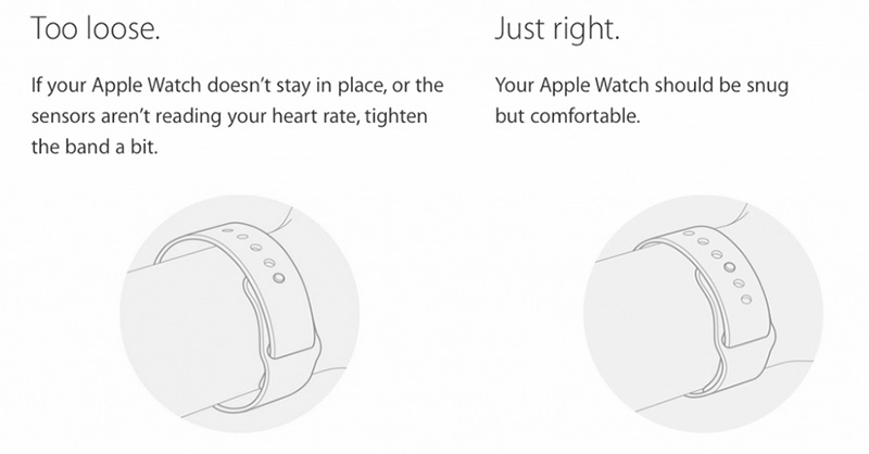 apple watch irritations bracelets