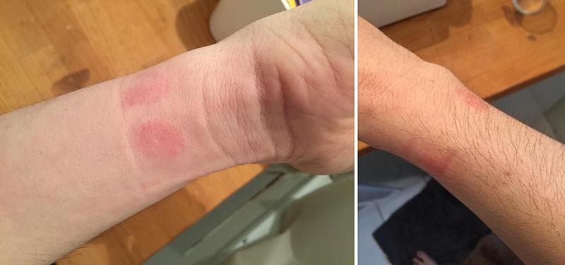 apple watch irritations