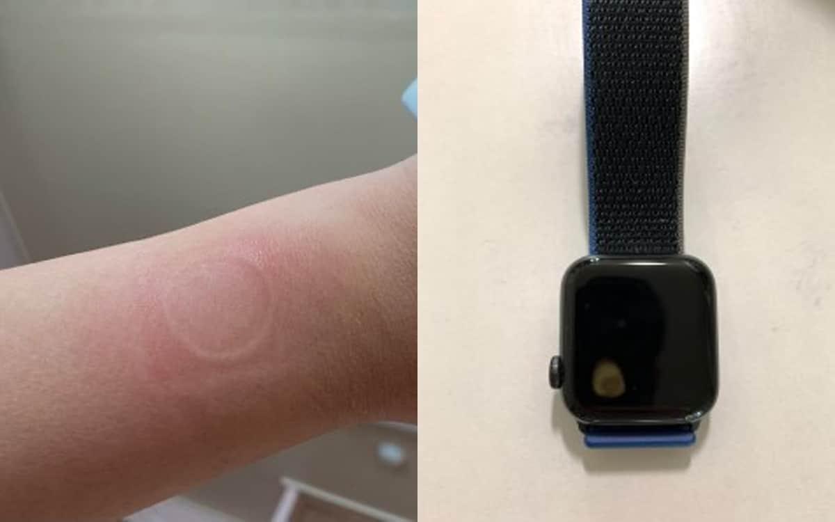 apple watch se montre surchauffe brûle